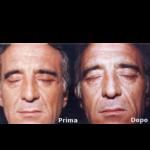 Brisolese_blefaroplastica_prima_dopo_03
