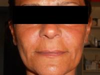 paziente post trattamento con filler Allergan: rughe naso-labiali riempite, immediato effetto di volto più giovane e rassodato